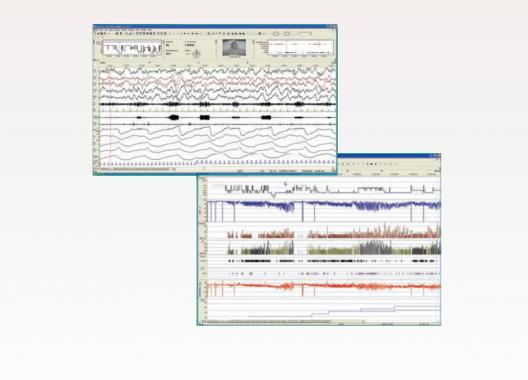 Embla® RemLogic™: Die weltweit verbreitetste Schlafdiagnostiksoftware. Diagnose des Obstruktiven Schlaf Apnoe Syndroms (OSAS) und anderen Schlafstörungen (zum Differenzieren von zentralen und obstruktiven Apnoen, Hypopnoen, kardial-, neurologisch- und respiratorisch-bedingten Schlafstörungen, und die Optimierung der PAP-Therapie (Positive-Airway-Pressure)).