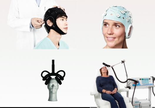 Nicht-invasive Hirnstimulation (NIBS)